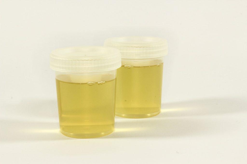 Simpatia para Dominar uma Pessoa com urina